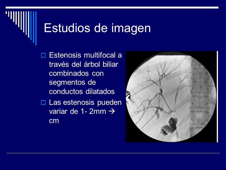 Estudios de imagen Estenosis multifocal a través del árbol biliar combinados con segmentos de conductos dilatados.