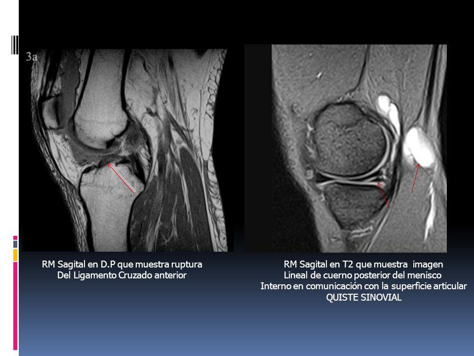 RM Sagital en D.P que muestra ruptura Del Ligamento Cruzado anterior