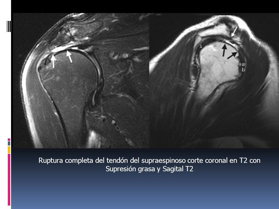 Ruptura completa del tendón del supraespinoso corte coronal en T2 con