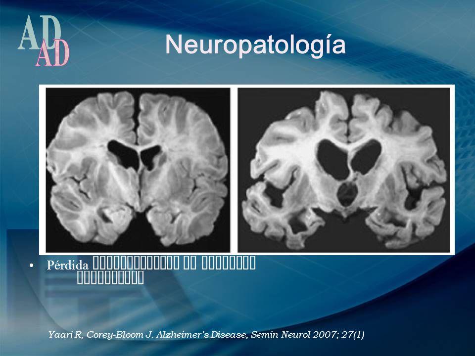 Neuropatología AD Pérdida significativa de neuronas Corticales