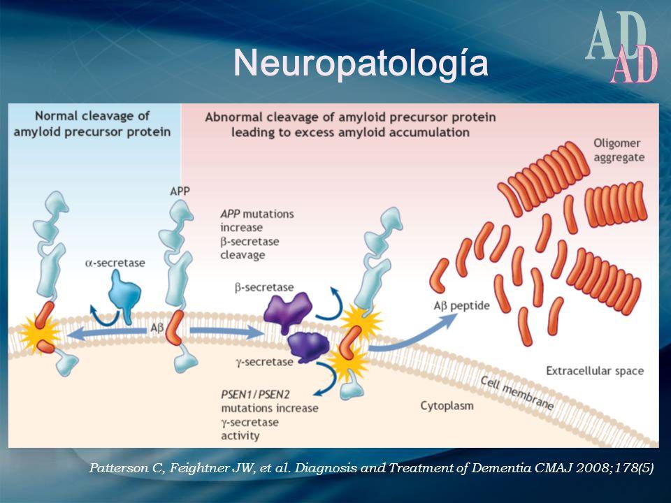 Neuropatología AD. Patterson C, Feightner JW, et al.