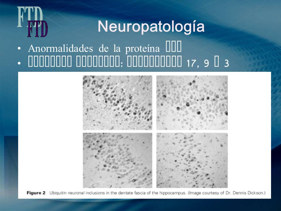 Neuropatología FTD Anormalidades de la proteína Tau