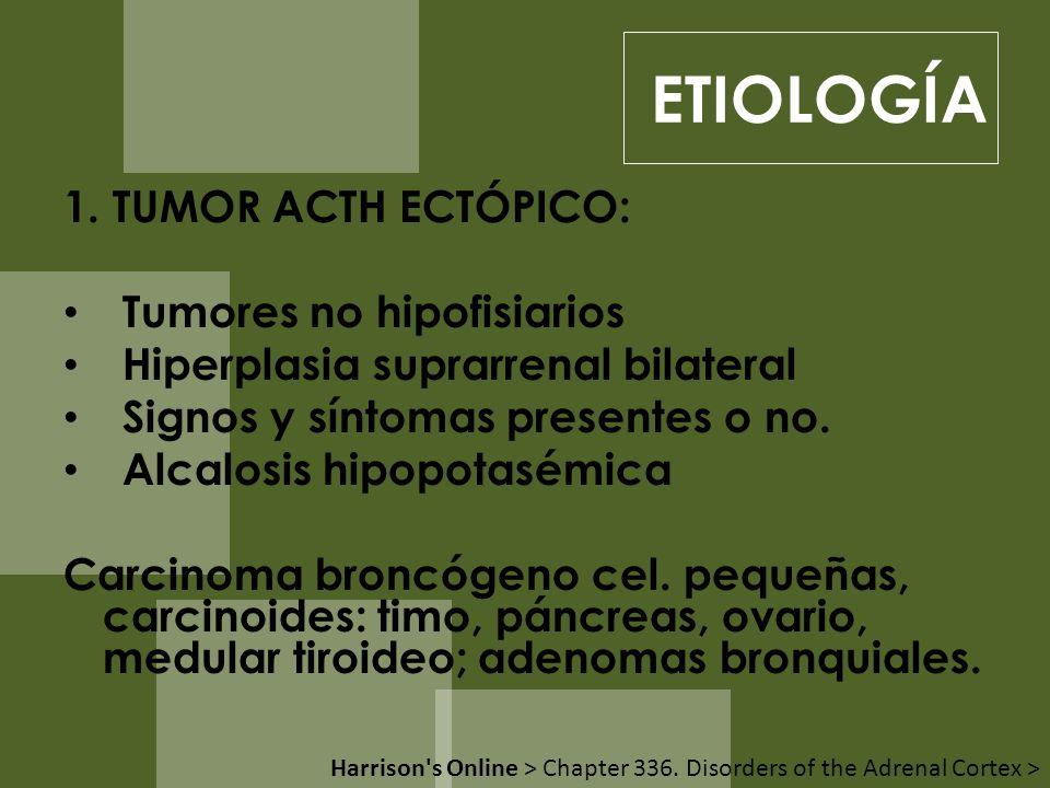 ETIOLOGÍA 1. TUMOR ACTH ECTÓPICO: Tumores no hipofisiarios