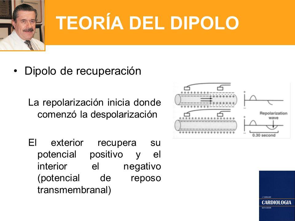 TEORÍA DEL DIPOLO Dipolo de recuperación