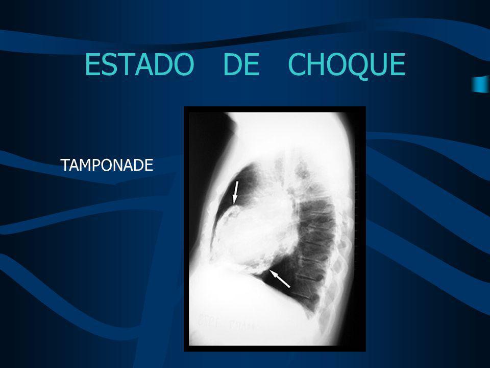 ESTADO DE CHOQUE TAMPONADE
