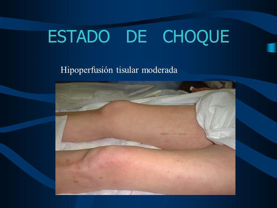 ESTADO DE CHOQUE Hipoperfusión tisular moderada