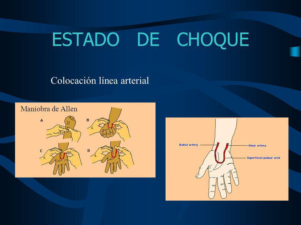 ESTADO DE CHOQUE Colocación línea arterial Maniobra de Allen