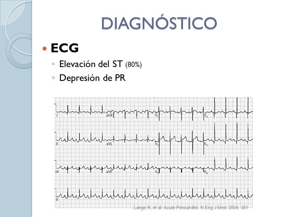 DIAGNÓSTICO ECG Elevación del ST (80%) Depresión de PR