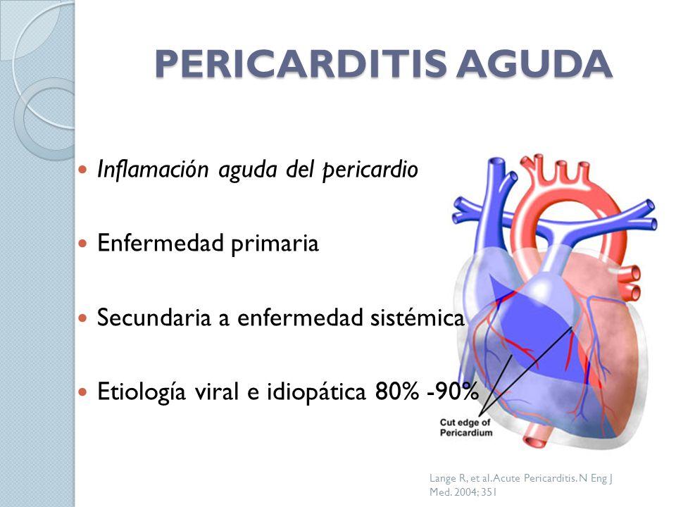 PERICARDITIS AGUDA Inflamación aguda del pericardio