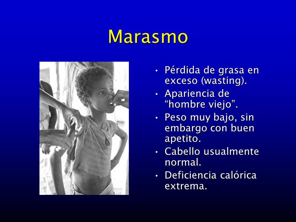 Marasmo Pérdida de grasa en exceso (wasting).