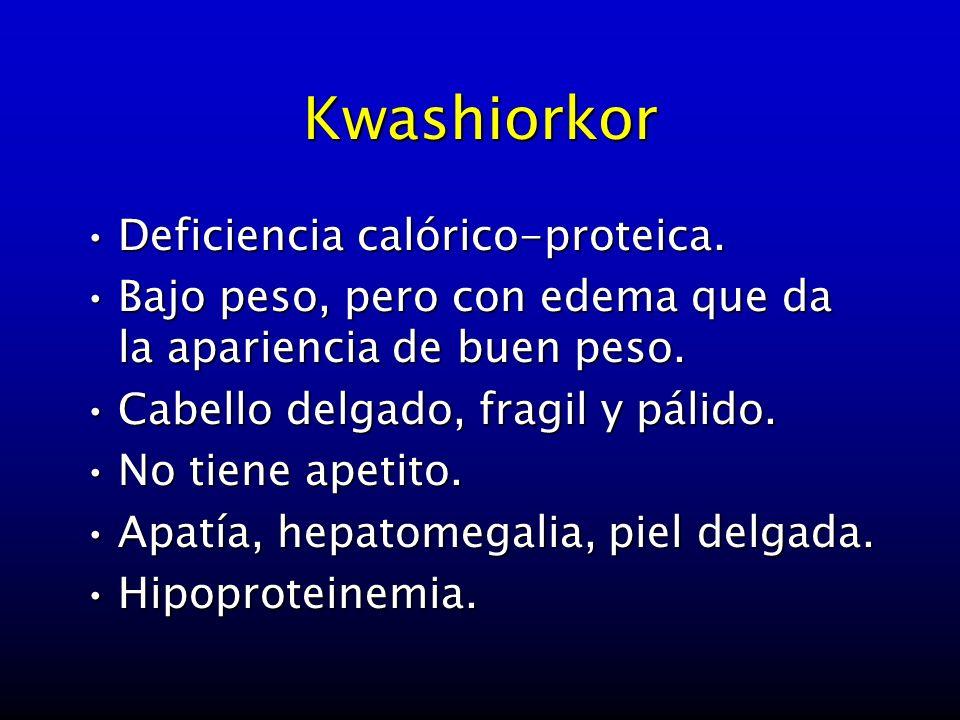 Kwashiorkor Deficiencia calórico-proteica.