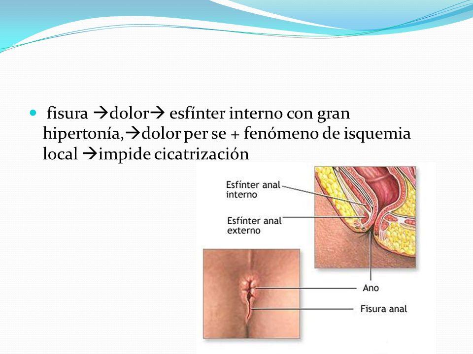 fisura dolor esfínter interno con gran hipertonía,dolor per se + fenómeno de isquemia local impide cicatrización
