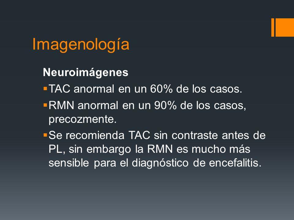 Imagenología Neuroimágenes TAC anormal en un 60% de los casos.