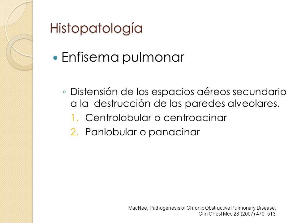 Histopatología Enfisema pulmonar