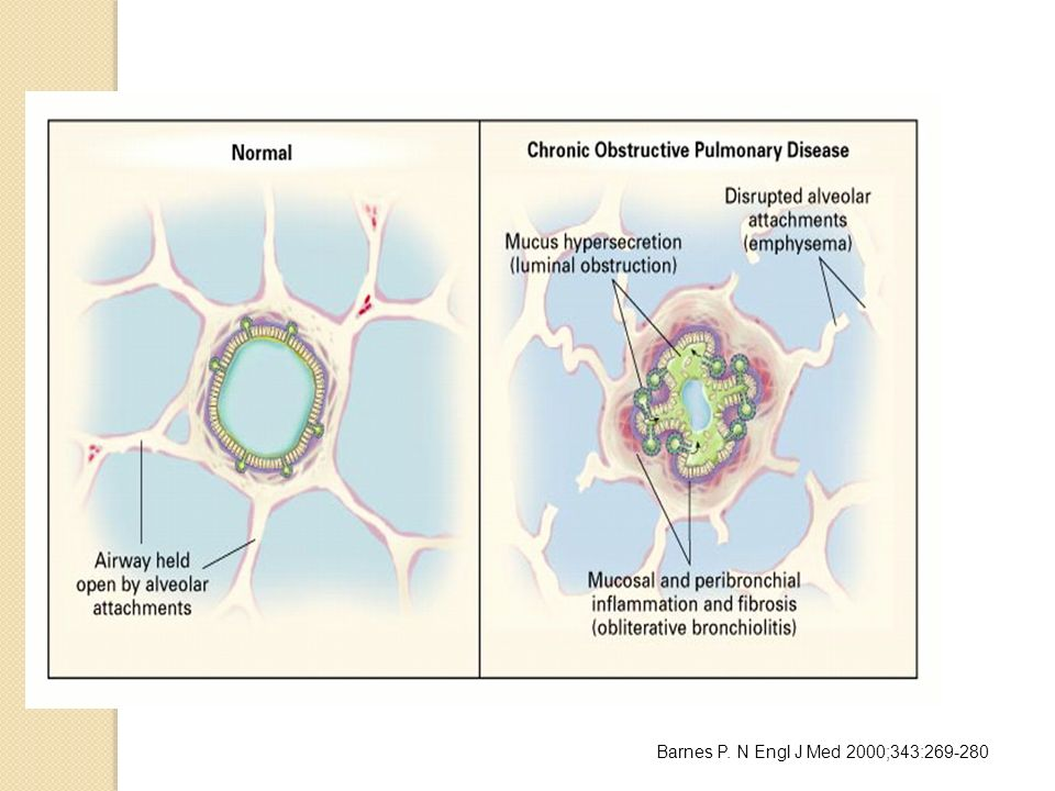 Mechanisms of Airflow Limitation in Chronic Obstructive Pulmonary Disease