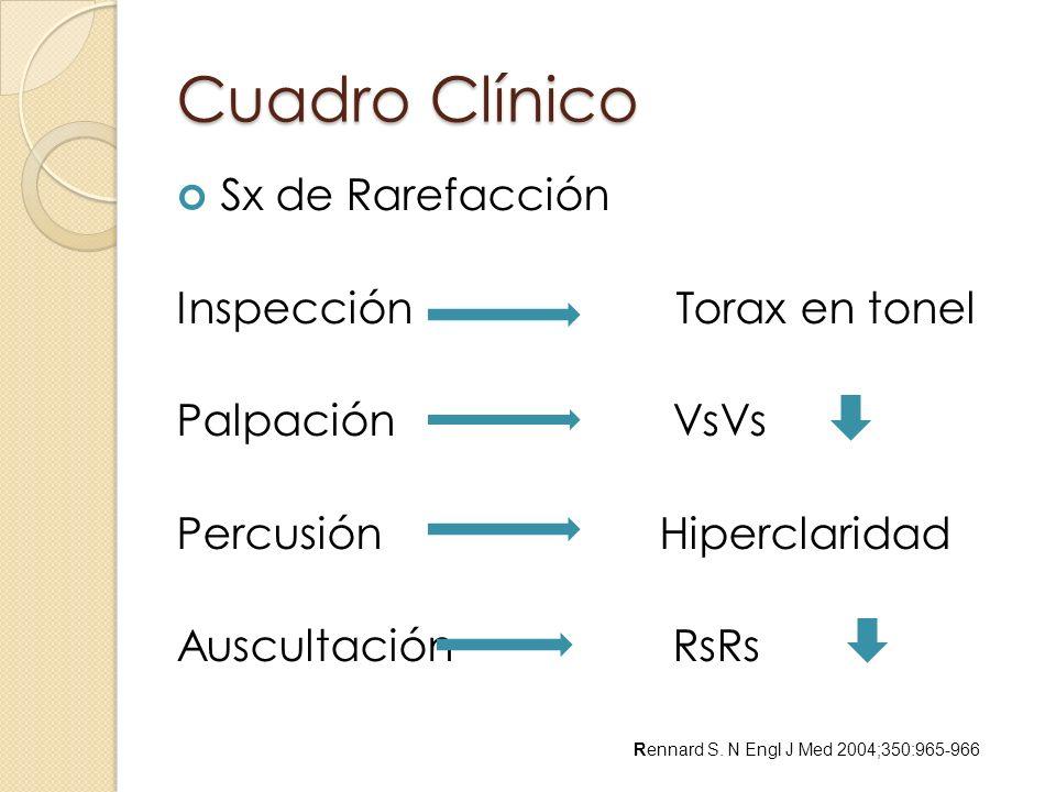 Cuadro Clínico Sx de Rarefacción Inspección Torax en tonel