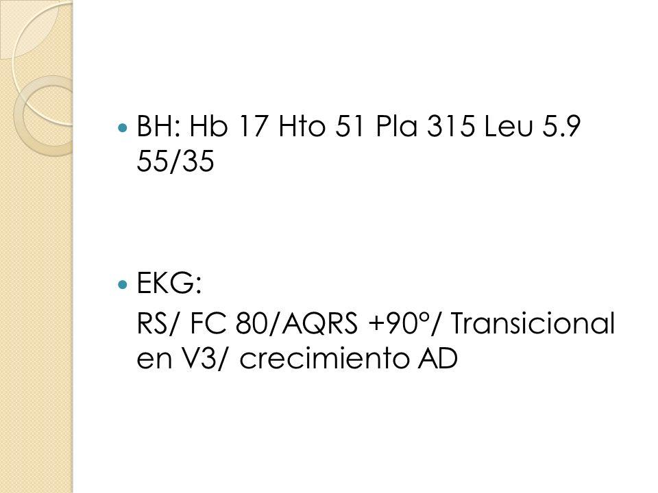 BH: Hb 17 Hto 51 Pla 315 Leu 5.9 55/35 EKG: RS/ FC 80/AQRS +90°/ Transicional en V3/ crecimiento AD.