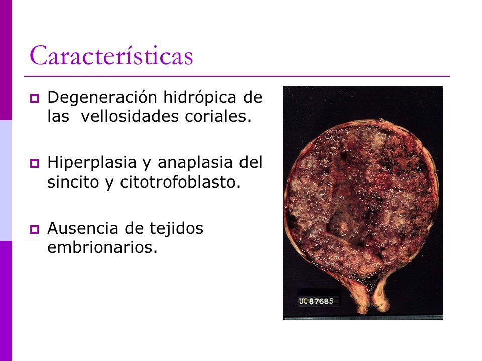 Características Degeneración hidrópica de las vellosidades coriales.