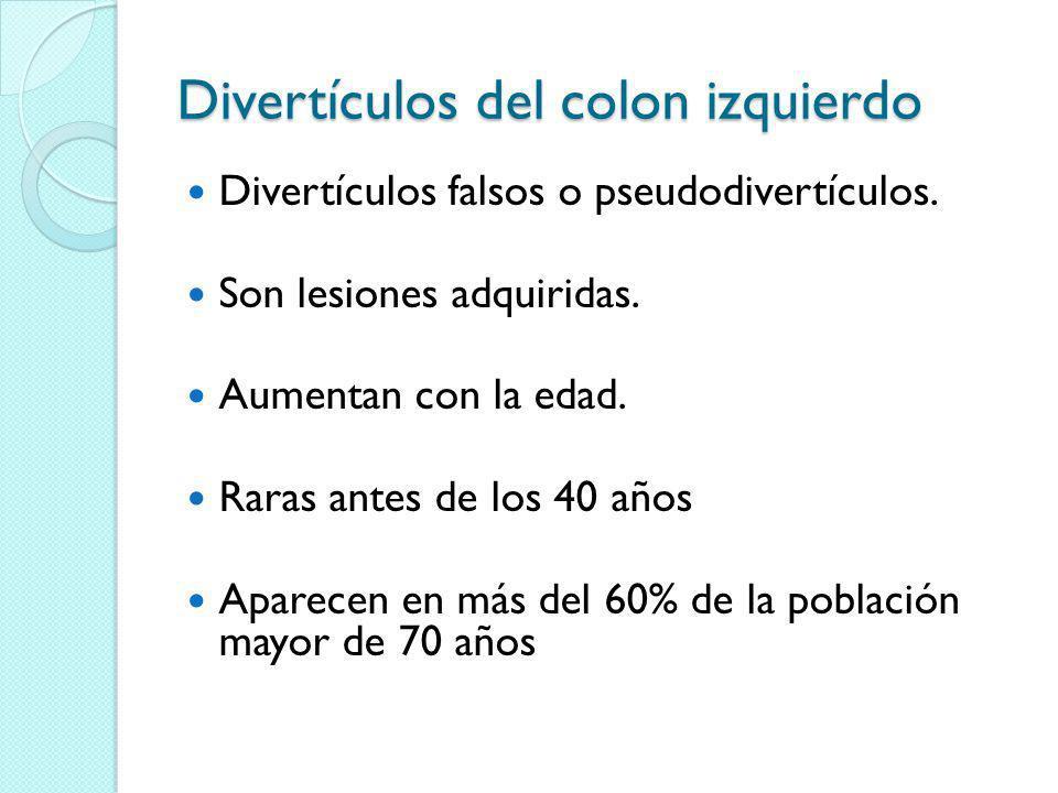 Divertículos del colon izquierdo