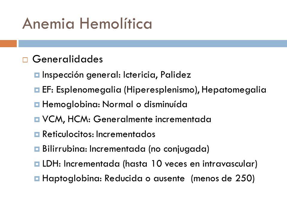 Anemia Hemolítica Generalidades Inspección general: Ictericia, Palidez