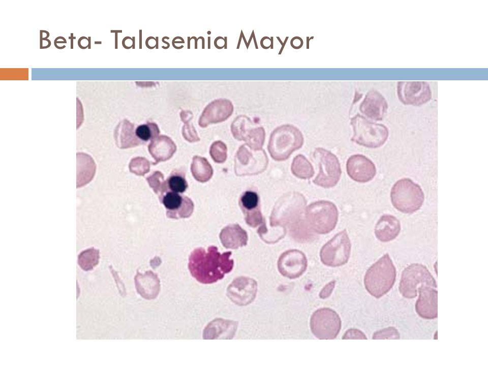 Beta- Talasemia Mayor anisopoikilocytosis, including hypochromasia and numerous target cells, and erythroblastosis.