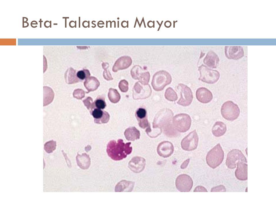 Beta- Talasemia Mayor anisopoikilocytosis, including hypochromasia and numerous target cells, and erythroblastosis.