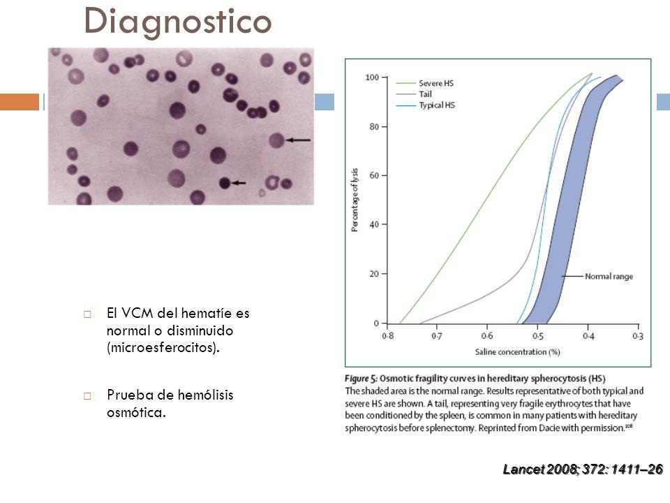 Diagnostico El VCM del hematíe es normal o disminuido (microesferocitos). Prueba de hemólisis osmótica.