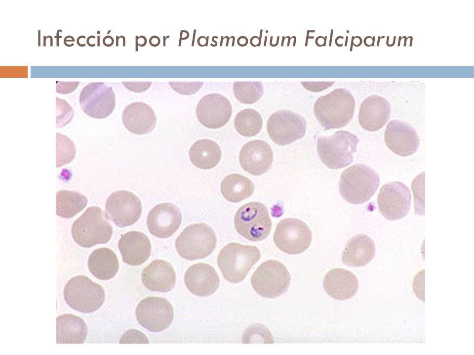 Infección por Plasmodium Falciparum