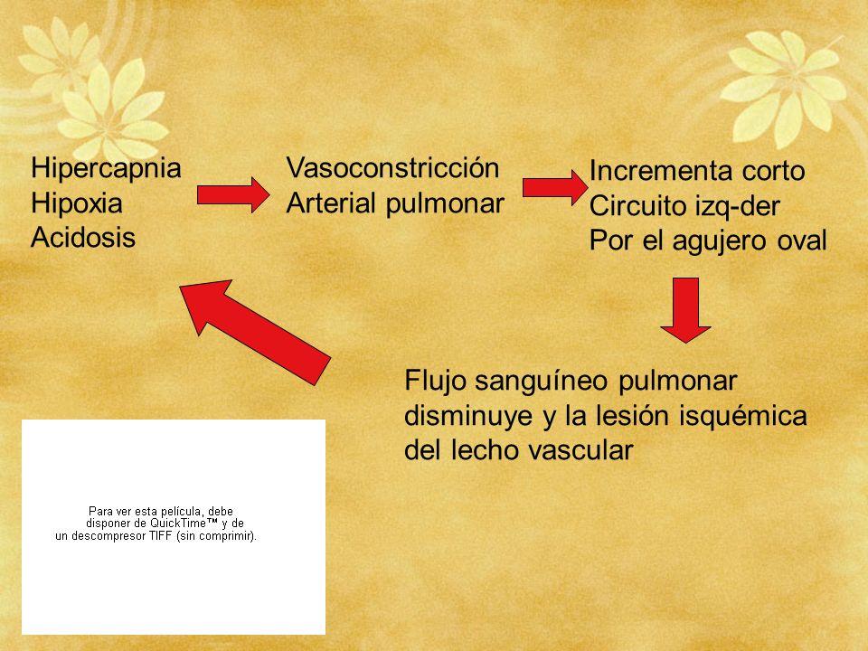 Hipercapnia Hipoxia. Acidosis. Vasoconstricción. Arterial pulmonar. Incrementa corto. Circuito izq-der.