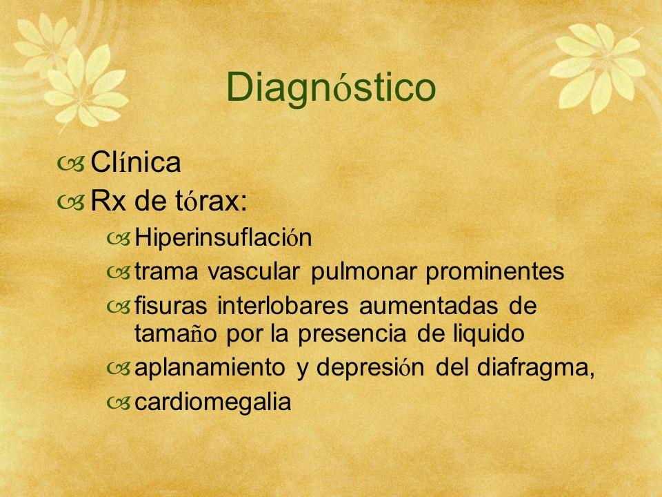 Diagnóstico Clínica Rx de tórax: Hiperinsuflación