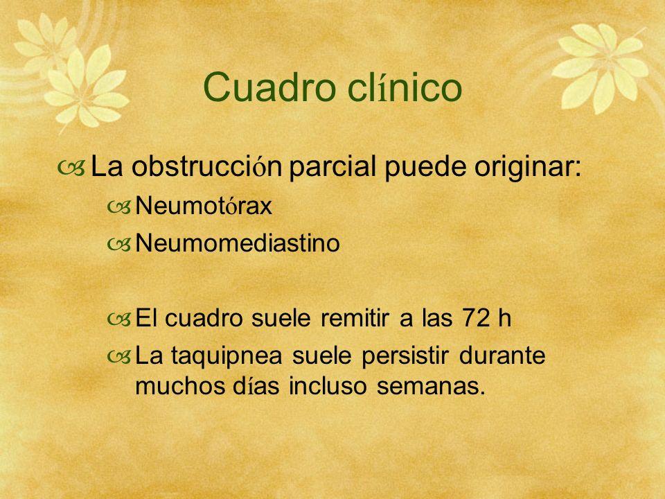 Cuadro clínico La obstrucción parcial puede originar: Neumotórax
