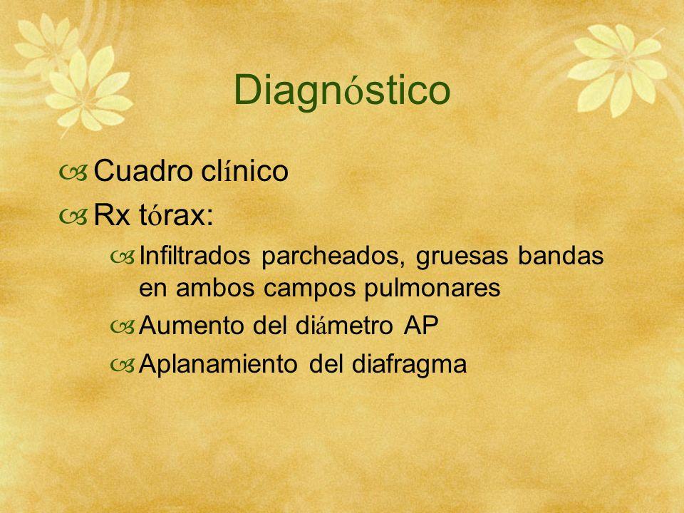 Diagnóstico Cuadro clínico Rx tórax: