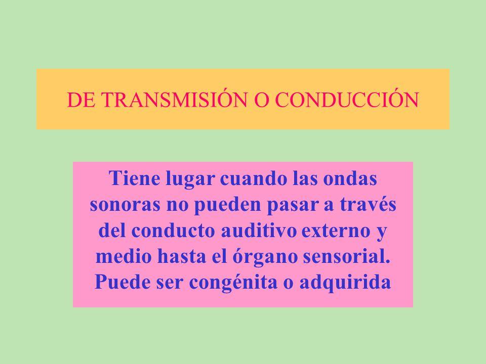 DE TRANSMISIÓN O CONDUCCIÓN