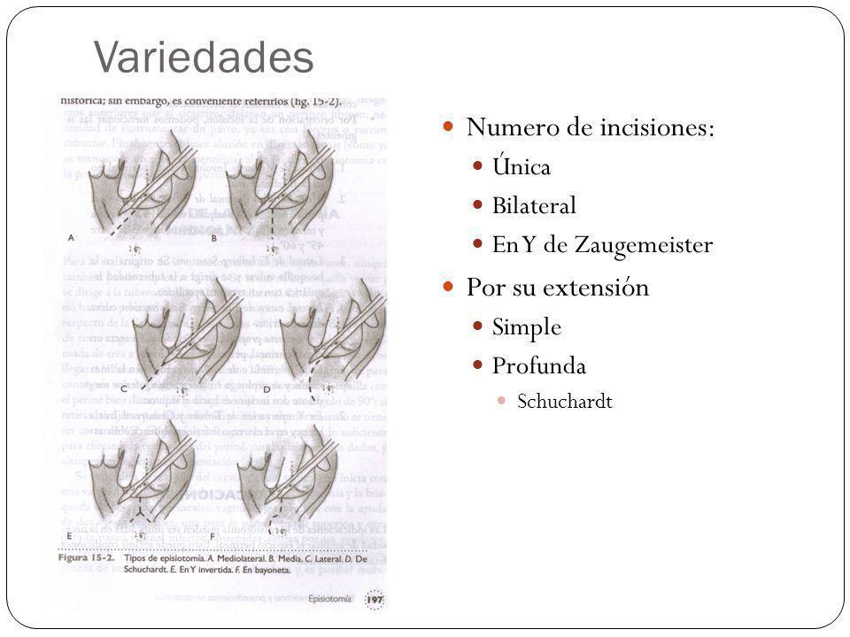 Variedades Numero de incisiones: Por su extensión Única Bilateral