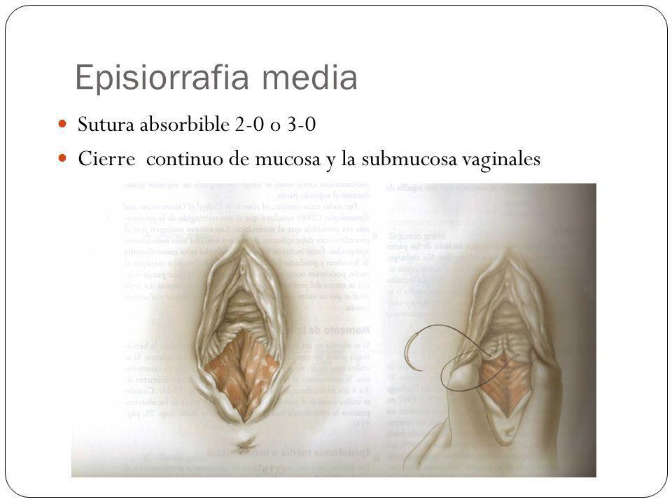 Episiorrafia media Sutura absorbible 2-0 o 3-0