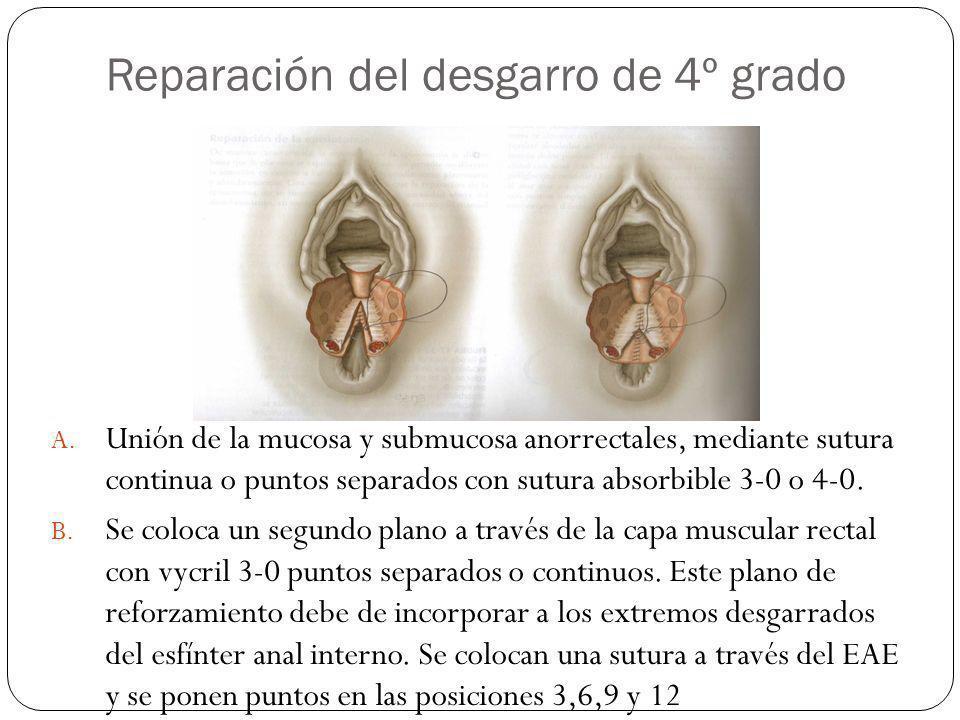 Reparación del desgarro de 4º grado