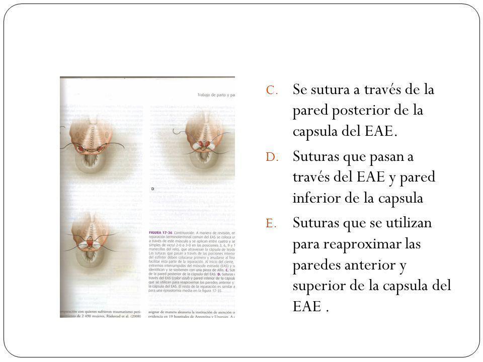 Se sutura a través de la pared posterior de la capsula del EAE.