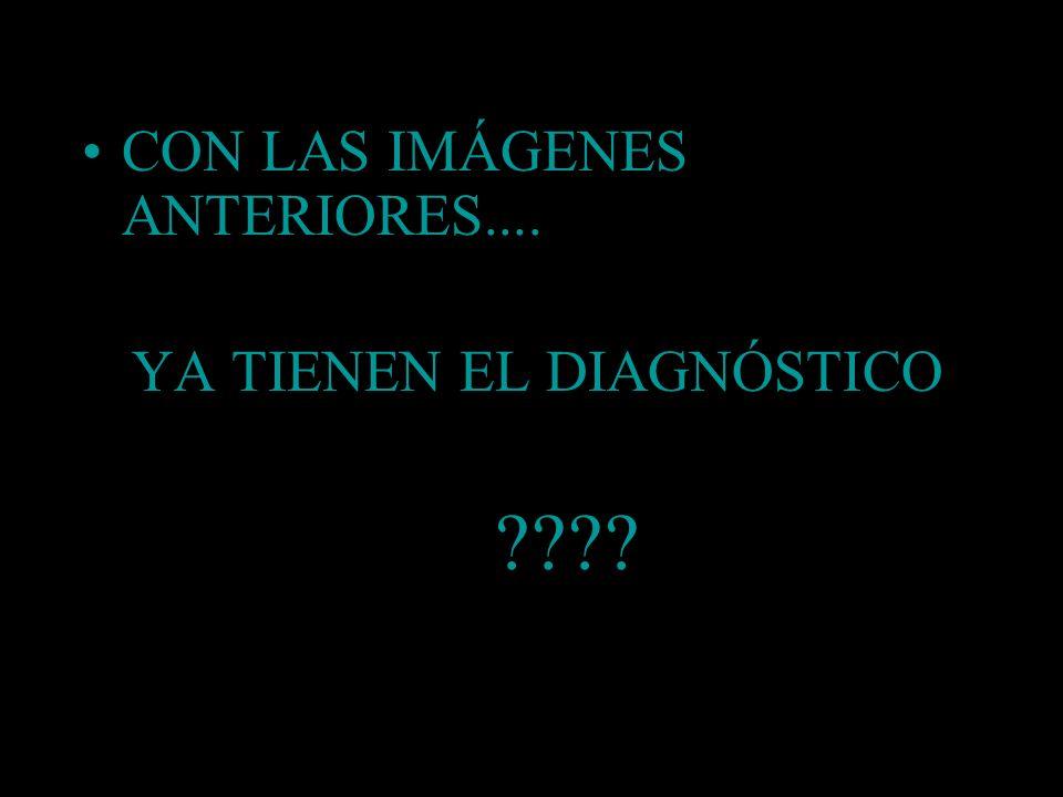 YA TIENEN EL DIAGNÓSTICO