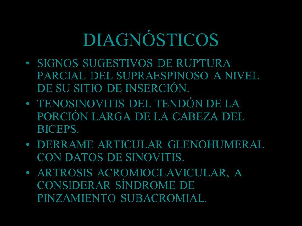 DIAGNÓSTICOS SIGNOS SUGESTIVOS DE RUPTURA PARCIAL DEL SUPRAESPINOSO A NIVEL DE SU SITIO DE INSERCIÓN.