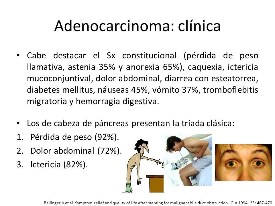 Adenocarcinoma: clínica