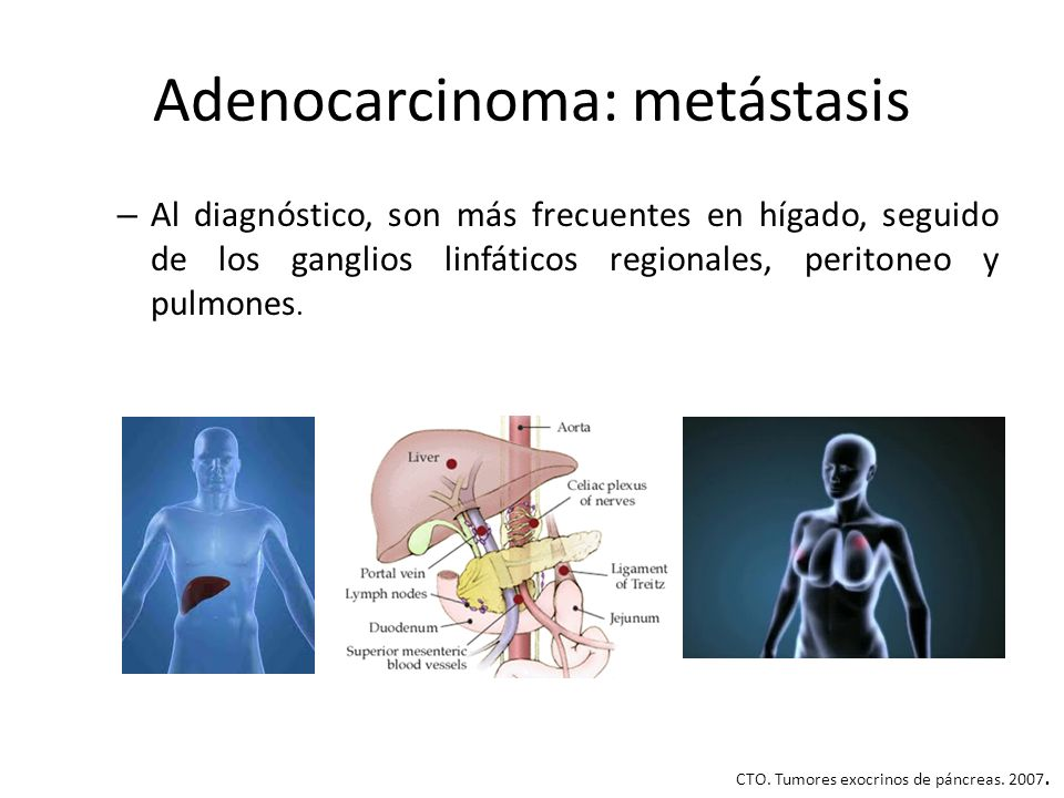 Adenocarcinoma: metástasis