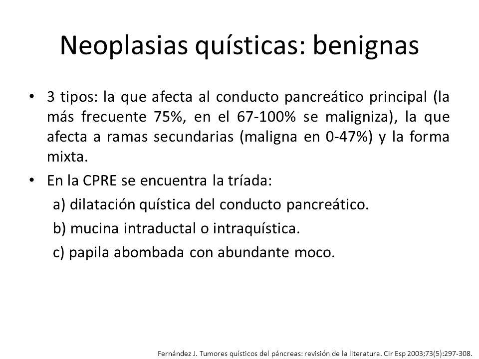 Neoplasias quísticas: benignas