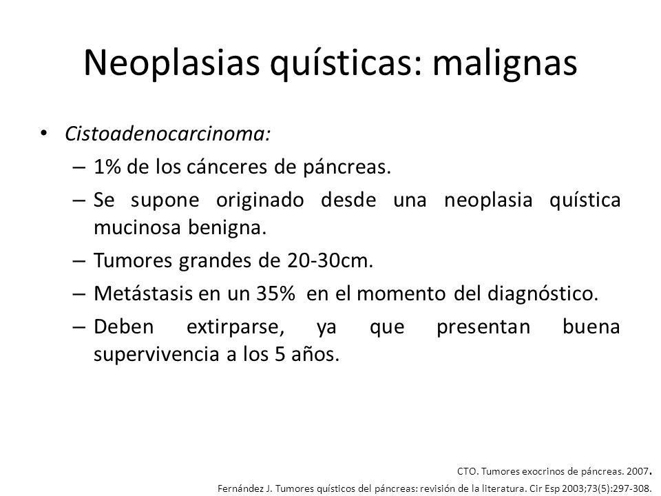 Neoplasias quísticas: malignas