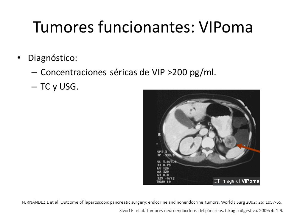 Tumores funcionantes: VIPoma