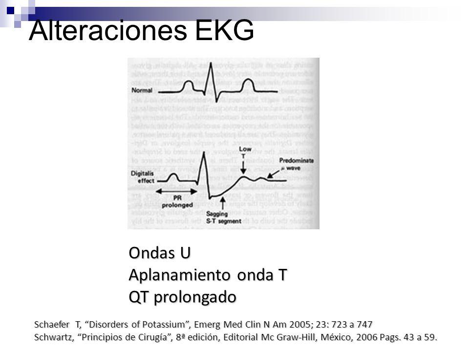 Alteraciones EKG Ondas U Aplanamiento onda T QT prolongado