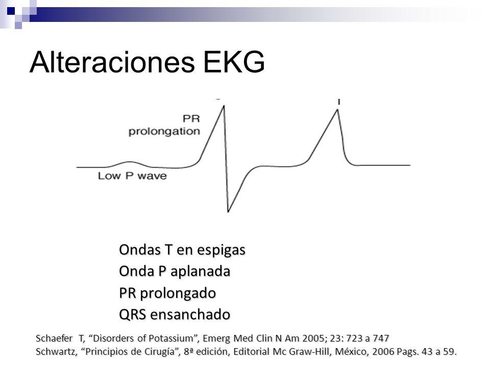 Alteraciones EKG Ondas T en espigas Onda P aplanada PR prolongado