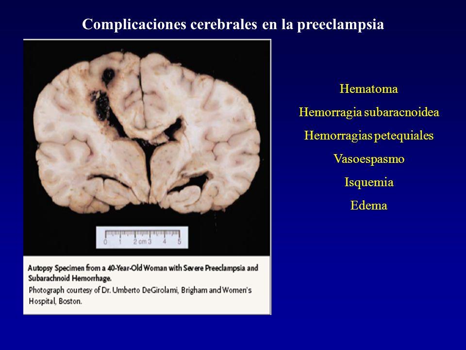 Complicaciones cerebrales en la preeclampsia