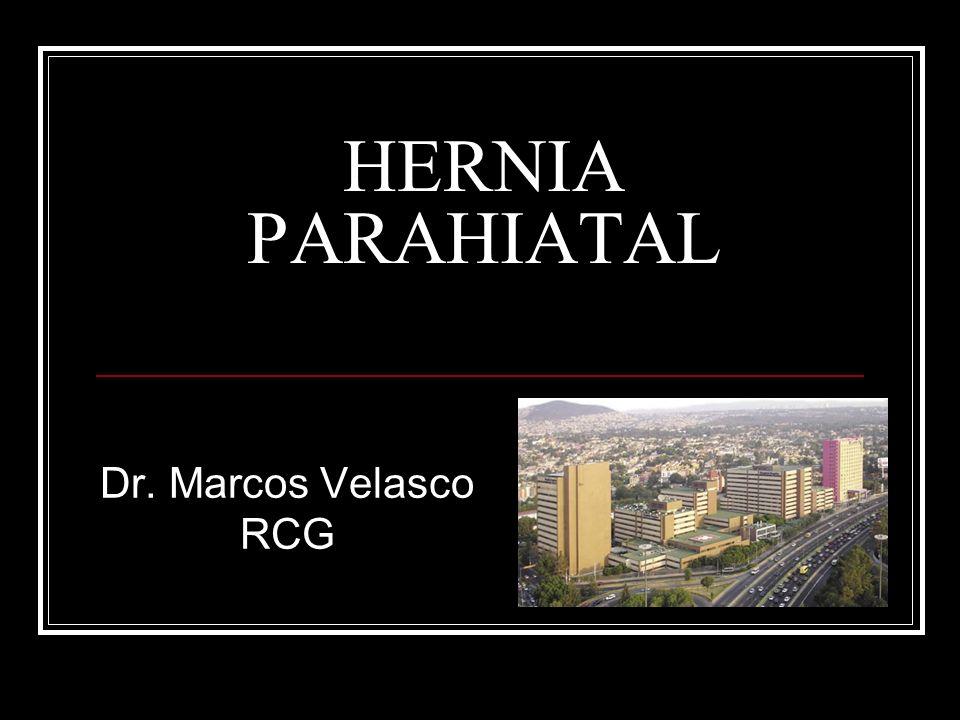 HERNIA PARAHIATAL Dr. Marcos Velasco RCG