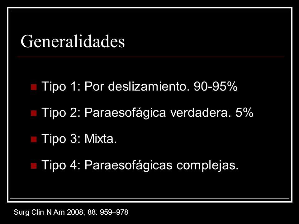 Generalidades Tipo 1: Por deslizamiento. 90-95%