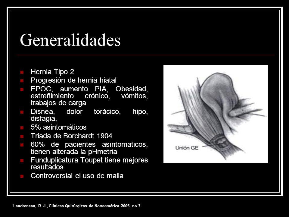 Generalidades Hernia Tipo 2 Progresión de hernia hiatal